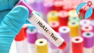 آزمایش های معمول در دیابت