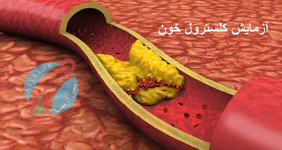 آزمایش کلسترول خون