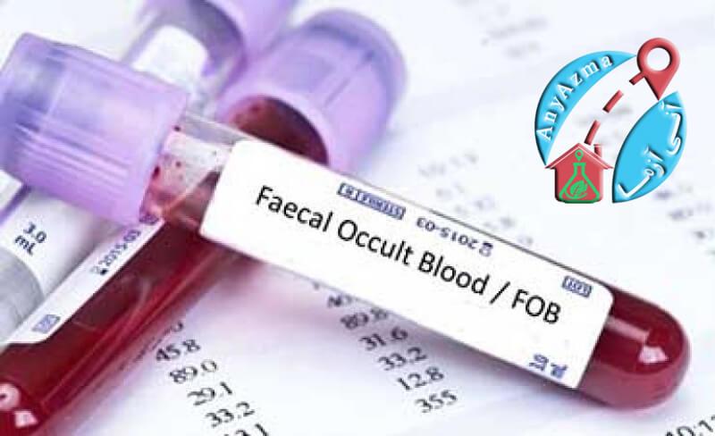 آزمایش خون مخفی در مدفوع (OB)