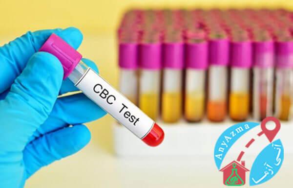 قیمت، هزینه آزمایش خون cbc