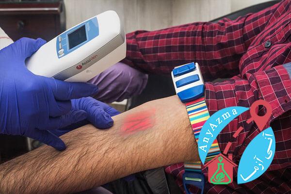 نمونه گیری خون در منزل یا محل کار چیست