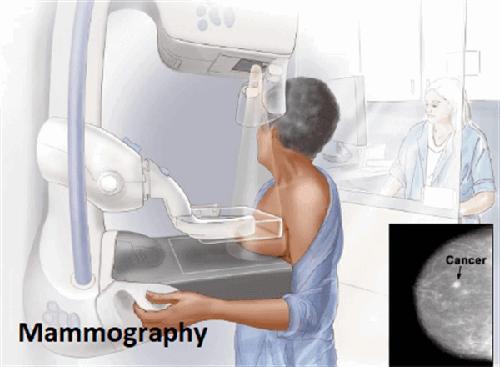 آزمایش چکاپ خانم ها برای ماموگرافی