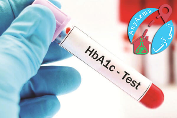 آزمایش چکاپ خانم ها برای تشخیص قند خون و دیابت