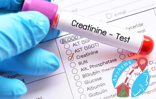 آزمایش کراتینین (Cr)