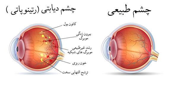 سلامت چشم در دوران دیابت چشم دیابتی رتينوپاتي