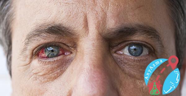 سلامت چشم در دوران دیابت