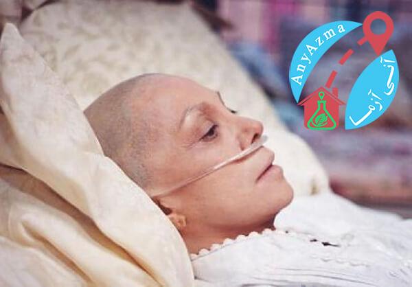 آزمایش تشخیص سرطان