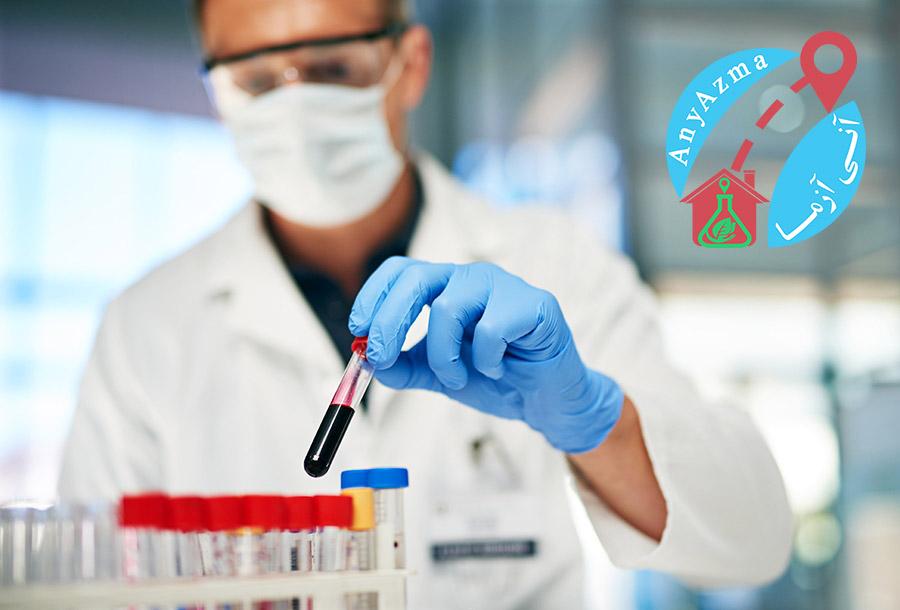 انواع روش های نمونه گیری آزمایش خون