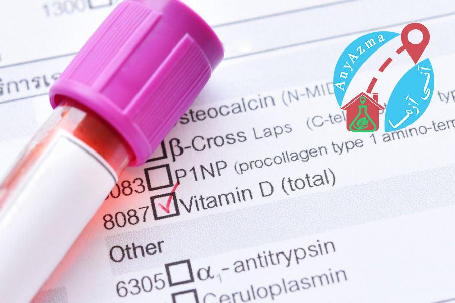 آزمایش چکاپ خون برای تشخیص اولیه بیماریها