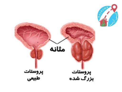وجود خون در ادرار نشانه ی چیست؟
