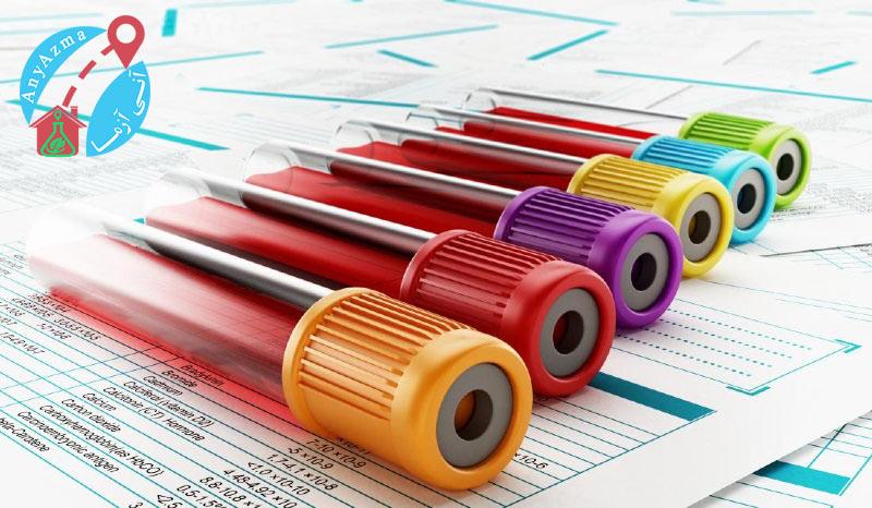 آیا ویروس کرونا با آزمایش خون نشان داده می شود؟