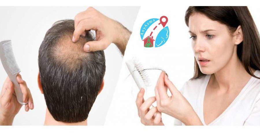 برای تشخیص ریزش مو چه آزمایش هایی لازم است؟