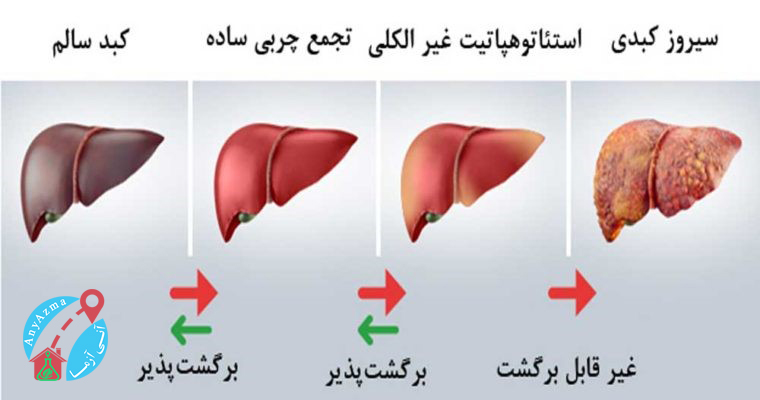 آزمایش های مرتبط با عملکرد کبد