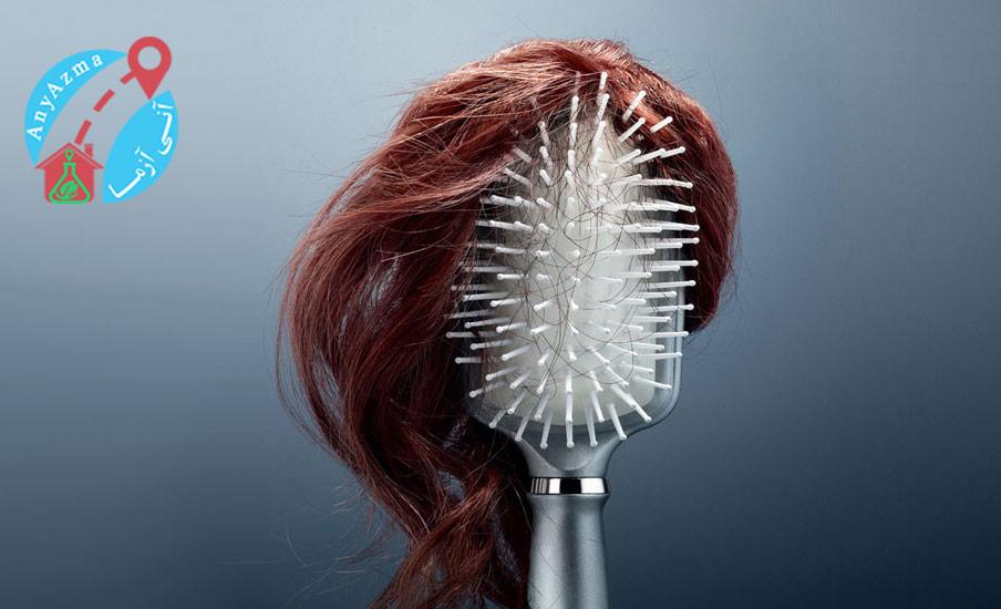 برای تشخیص ریزش مو چه آزمایش هایی لازم است؟برای تشخیص ریزش مو چه آزمایش هایی لازم است؟