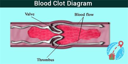 علت درخواست تست های انعقادی خون چیست؟