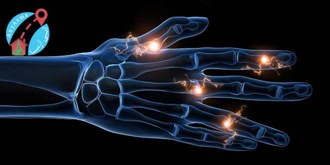 آزمایش تشخیص روماتیسم، درد های مفصلی