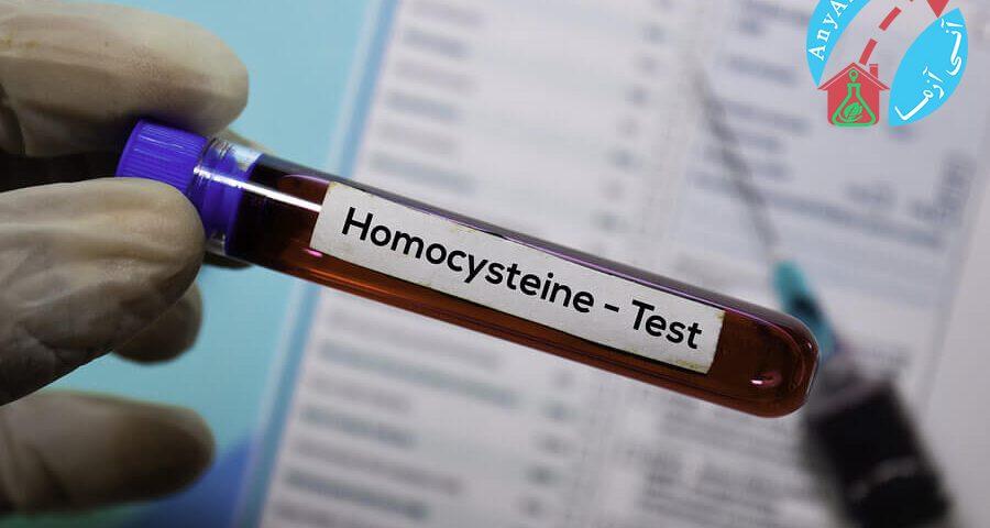 آزمایش هموسیستئین