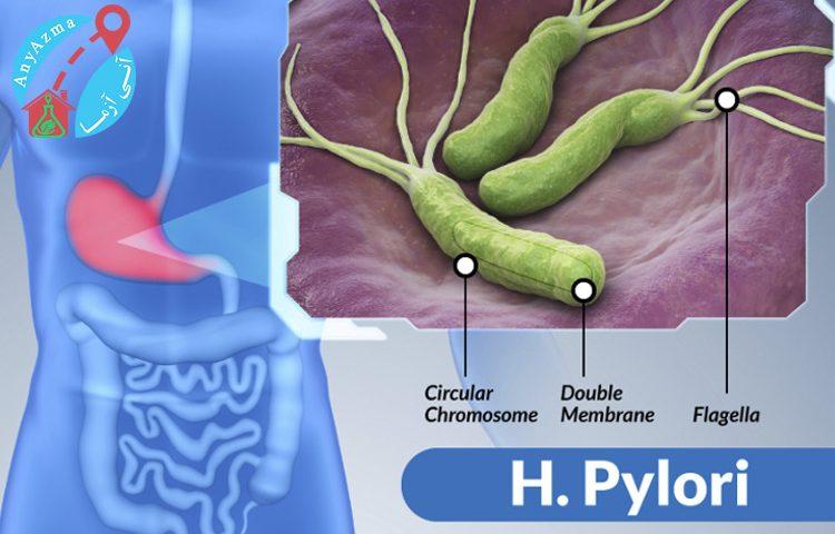 آزمایش هلیکوباکتر پیلوری برای تشخیص علت درد و سوزش معده
