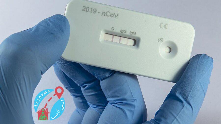 آزمایش آنتی بادی برای ویروس کرونا