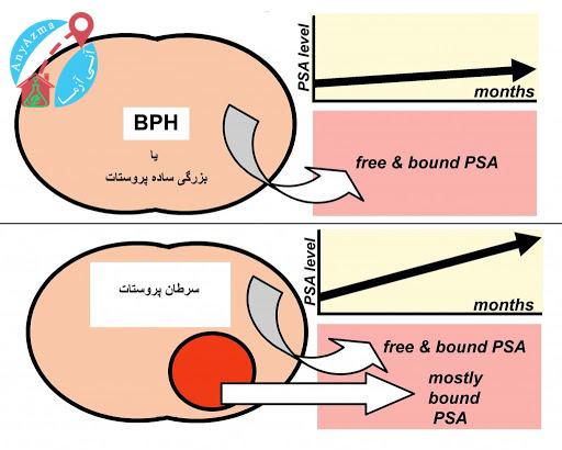 تشخیص مشکلات پروستات با آزمایش PSA و سایر تست ها